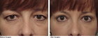 Blepharoplasty surgeon Springfield MA