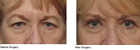 Northampton eye lift surgeon