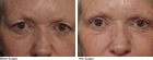 Allcroft Eye Lift Surgery